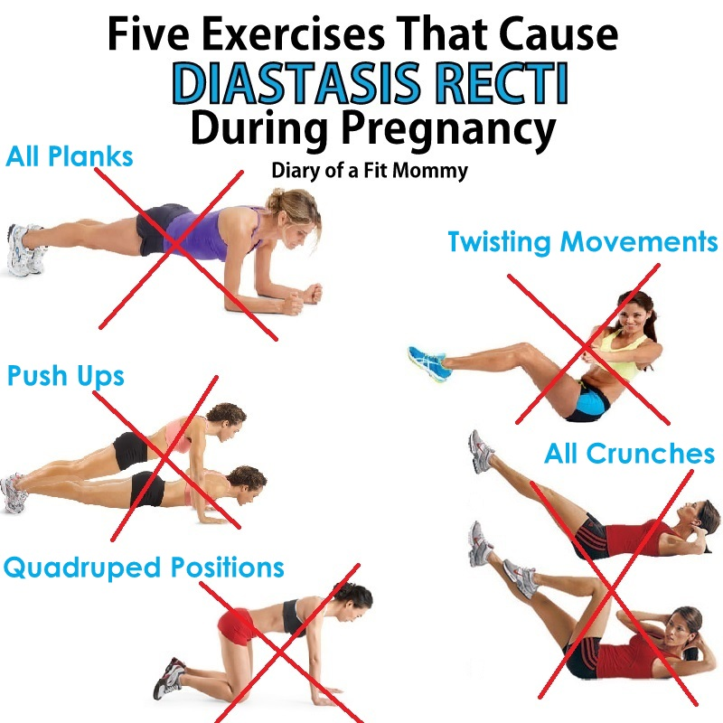 Diary of a Fit Mommy5 Exercises That Cause Diastasis Recti ...