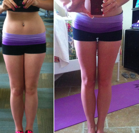 legs-before-and-after-weight-loss.1