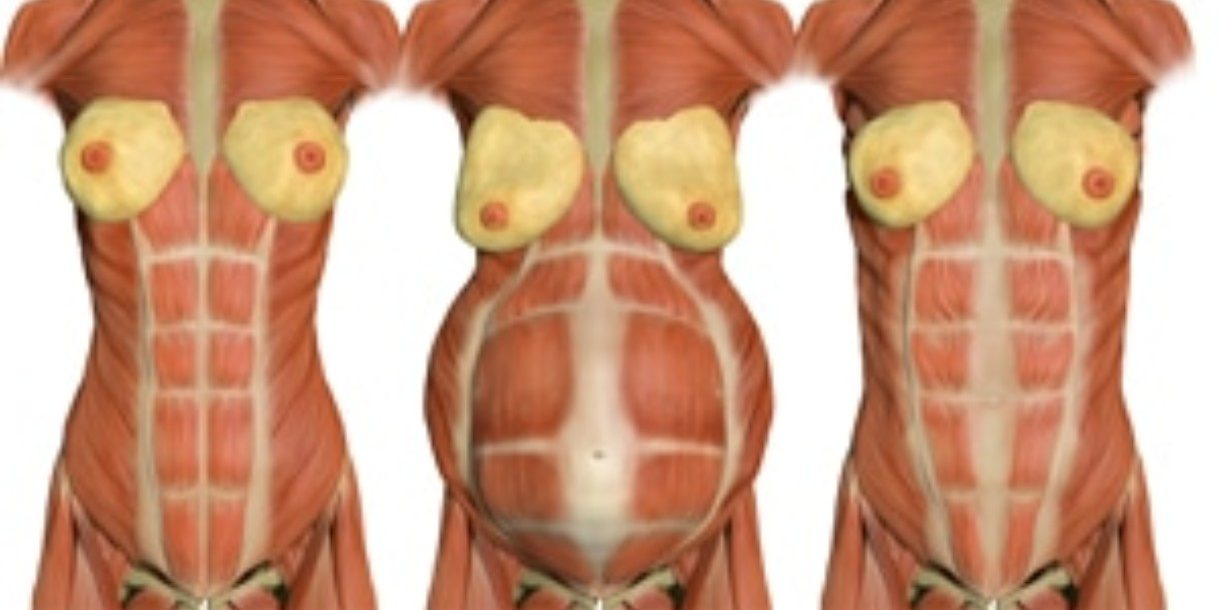 Diary of a Fit Mommydiastasis recti Archives - Diary of a ...
